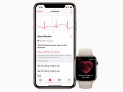 苹果公司开放Apple Watch 4心电图功能   只有美行可以使用